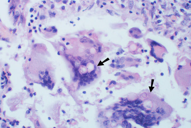 Budding yeasts in cytoplasm of giant cells at arrows. Broad-based budding and double countoured cell wall seen in the giant cell in the center is characteristic of Blastomyces dermatiditis.